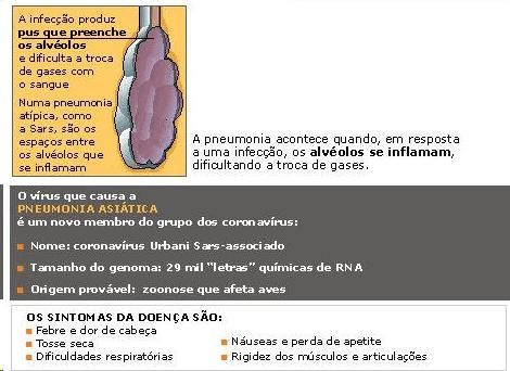 Sars (síndrome respiratória aguda grave) - sintomas