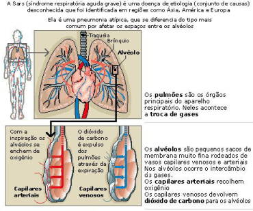 Sars (síndrome respiratória aguda grave)