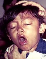 Coqueluche, tosse convulsiva ou pertússis