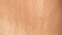 Manchas de pele na gravidez