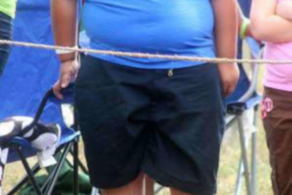 Diabetes tipo 2 e obesidade infantil - destacada