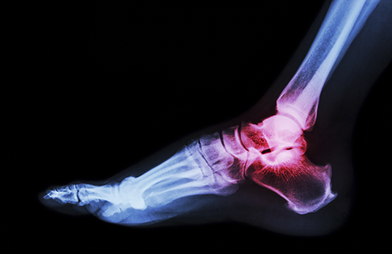 Teshuva: Lessons of a broken ankle