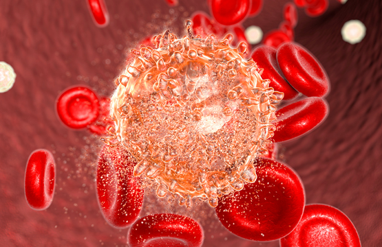 Targeted Stem Cells Might Hold the Key to Eradicating Leukemia