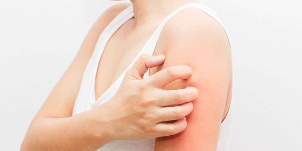 Eczema Guide Main Image