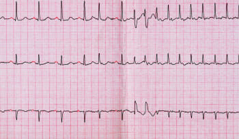 Managing Atrial Fibrillation in Primary Care