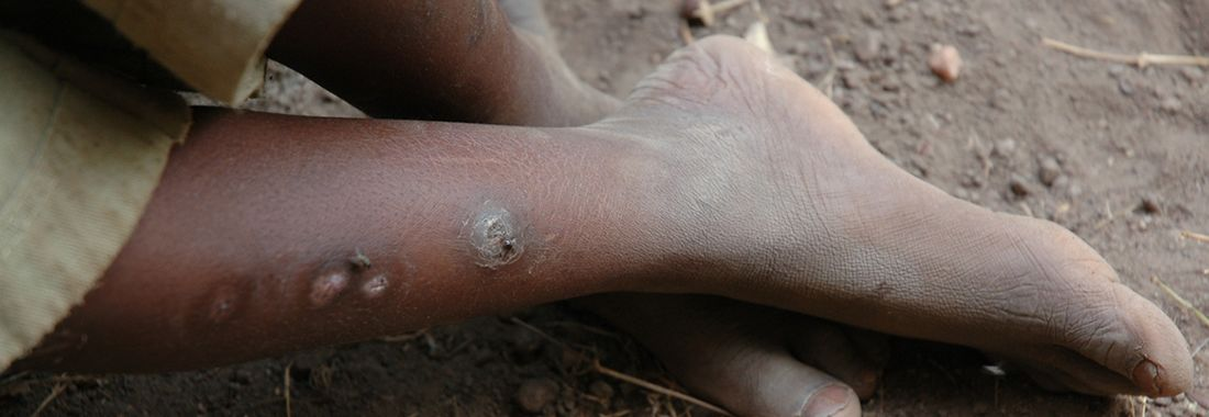 'Drink medicine' works as well as injection to treat skin sores