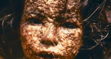 This young girl in Bangladesh was infected with smallpox in 1973… . Credit: CDC/James Hicks via Wikipedia