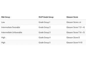 Adenocarcinoma de próstata de Gleason 8 4 4