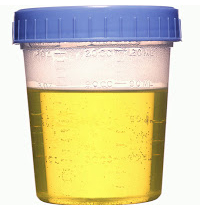 urine test for prostate problems)