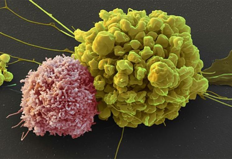 NK cell (pink) attacking tumor cell (green).  Sources: Nature (Credit: Eye of science/SPL)