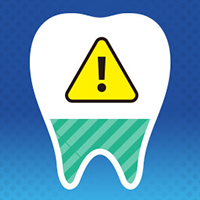 interdental-periodontal
