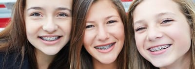 Types of Braces article banner
