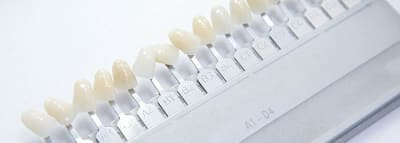 Dental Veneers - What to Expect  article banner