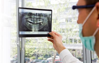 What is a Cavity and What Causes Tooth Decay? article banner