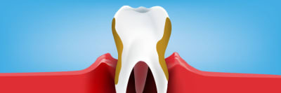 What is Periodontitis? Treatments, Signs, and Symptoms article banner