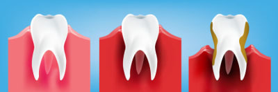 Types of Gum Disease: Stages, Factors & Related Conditions article banner