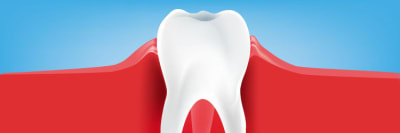 What is Gingivitis? Symptoms, Causes, and Treatments article banner