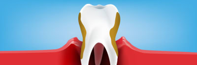 Toothpaste for gum disease article banner
