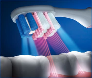 Gingival care Interdental Side by side image three