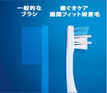 Gingival care Interdental Side by side image five