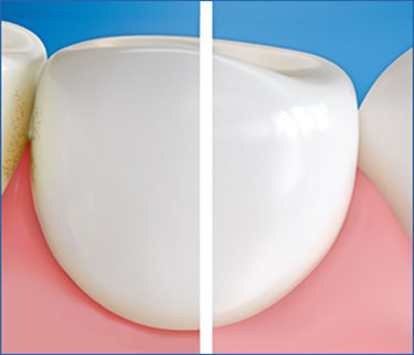 Gingival care Interdental Side by side image one