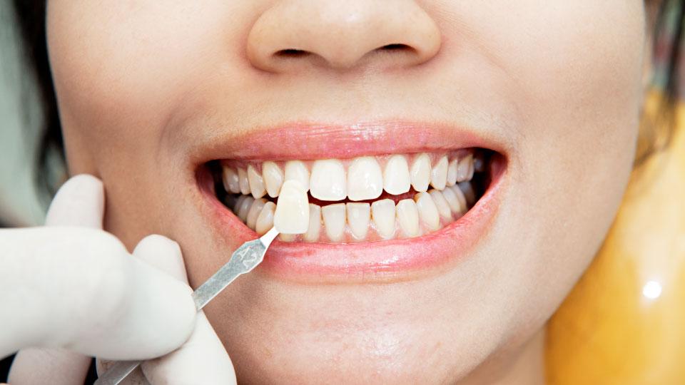 Dental veneer treatment