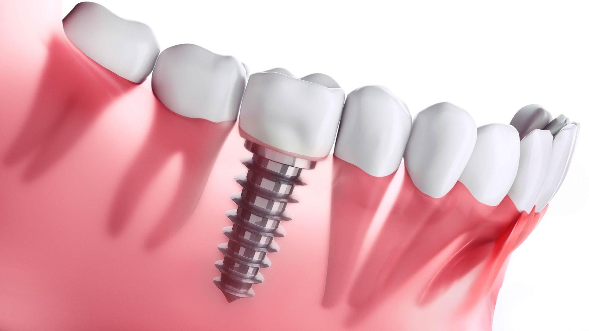 Dental implant using titanium screw.