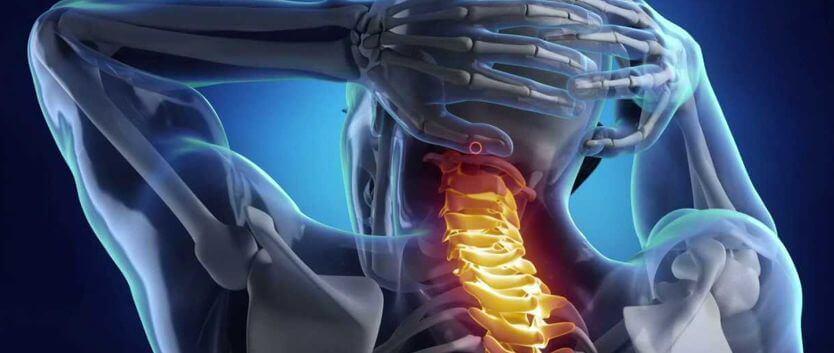 Ernia Cervicale: Sintomi, Cause e Rimedi