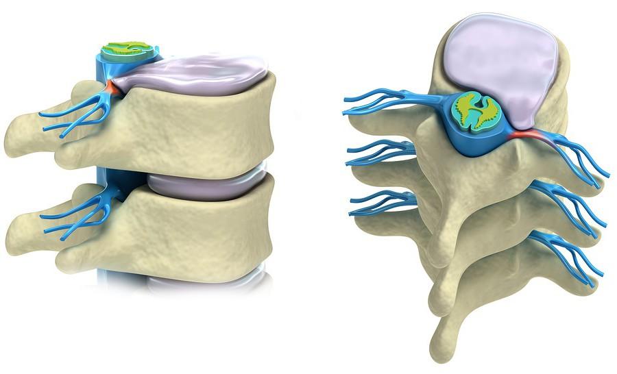 vertebre e nervi