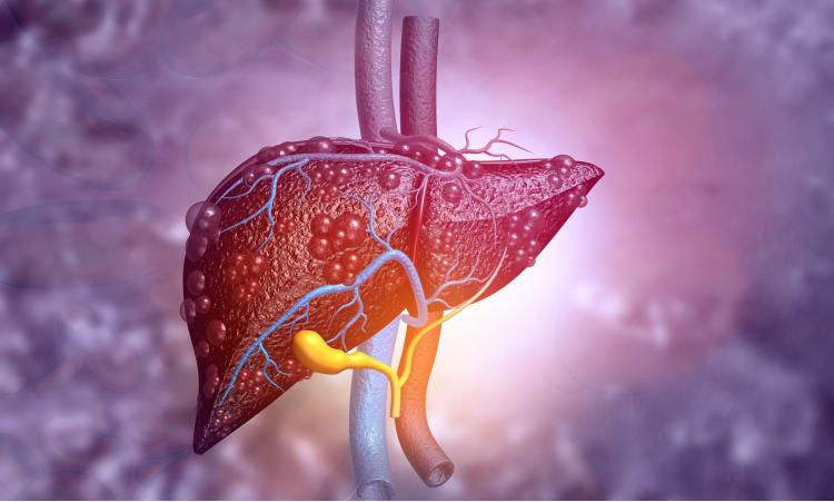 So bleibt ihre Leber gesund! | Leber Gesundheit Bewegung Entgiftung Körper organe