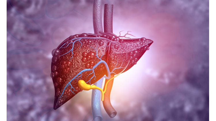 So bleibt ihre Leber gesund!   Leber Gesundheit Bewegung Entgiftung Körper organe