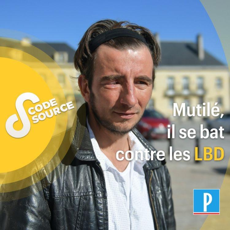 cover art for Mutilé, il se bat contre les LBD