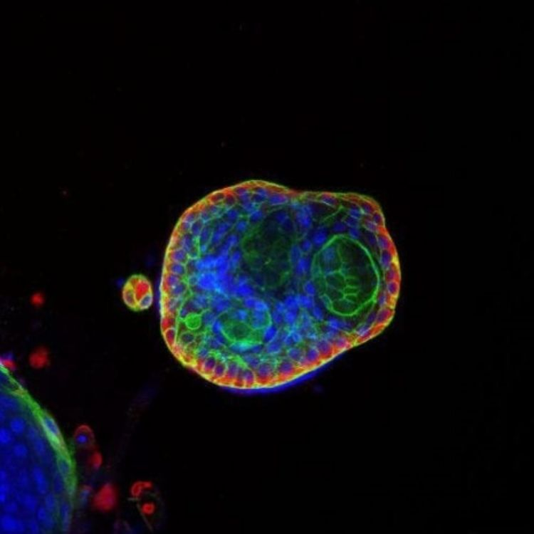 cover art for Organoids: advancing drug discovery and cancer research