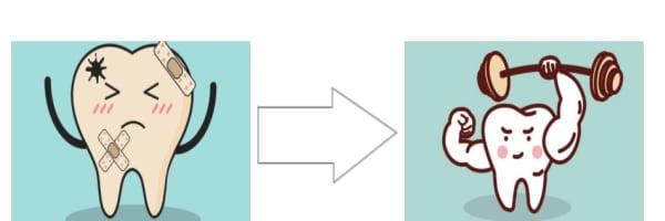 Filling A Cavity - Image 7