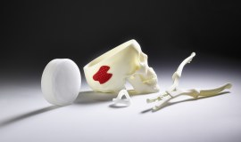 Additive manufacturing in medical technology
