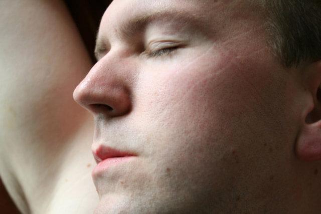 5 Tips Menghilangkan Lipatan Bekas Bantal Pada Wajah