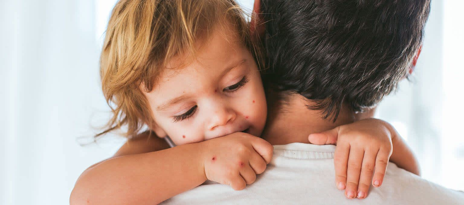 Chicken Pox in Babies and Toddlers