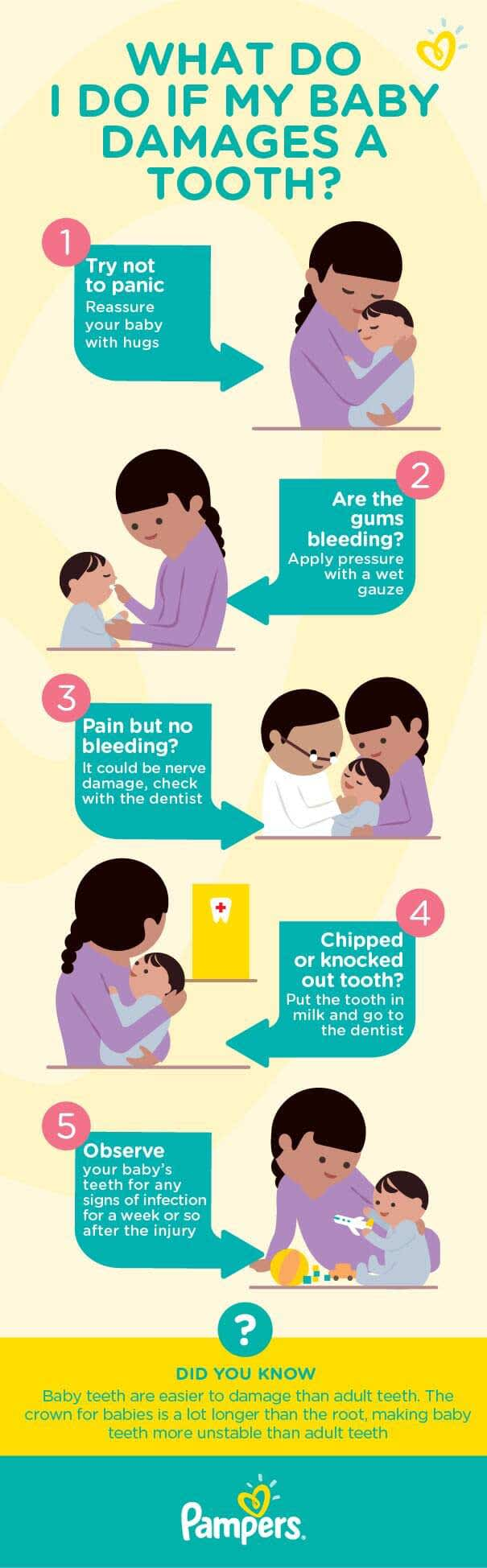 Your 5 Step Guide to Baby Tooth Injury