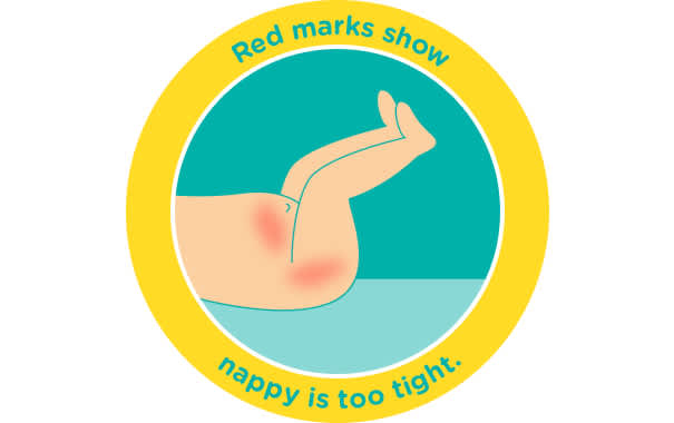 If your baby has red marks around the nappy straps, the nappy may be too small