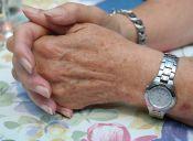 Cómo atenuar las manchas de la edad de las manos