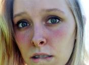 5 consejos para el cuidado de la piel sensible