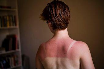 4 remedios caseros para aliviar las quemaduras de sol