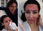Tratamiento de belleza de Kim Kardashian