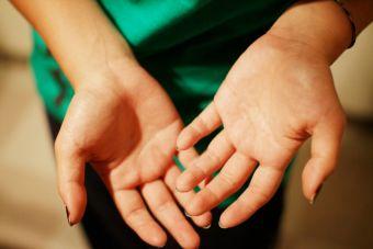 Pequeñas cosas terribles: que te transpiren las manos