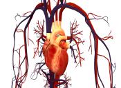 Preguntas PSU Ciencias: Patología del sistema cardiovascular