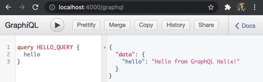 01-graphql-helix-localhost-4000