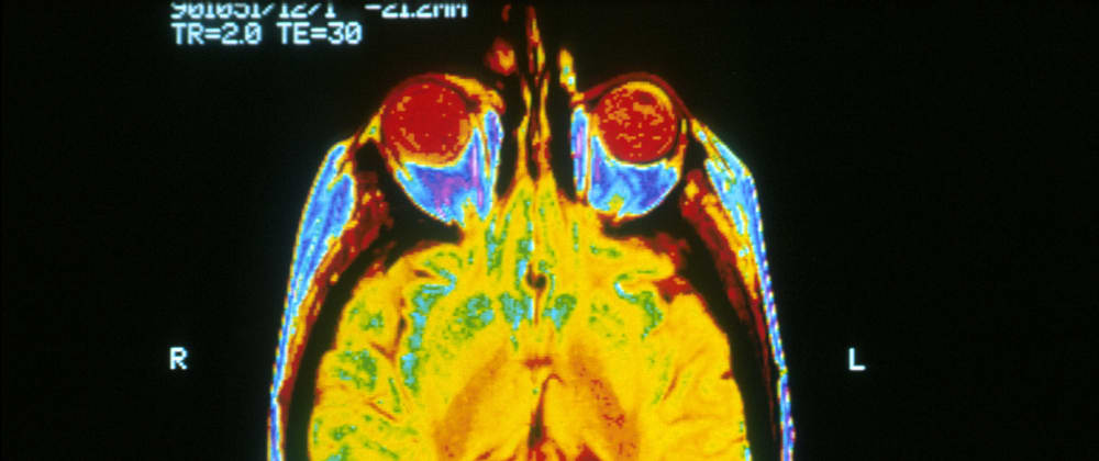 Cover image for Episode 7: Brain Scans and Networking