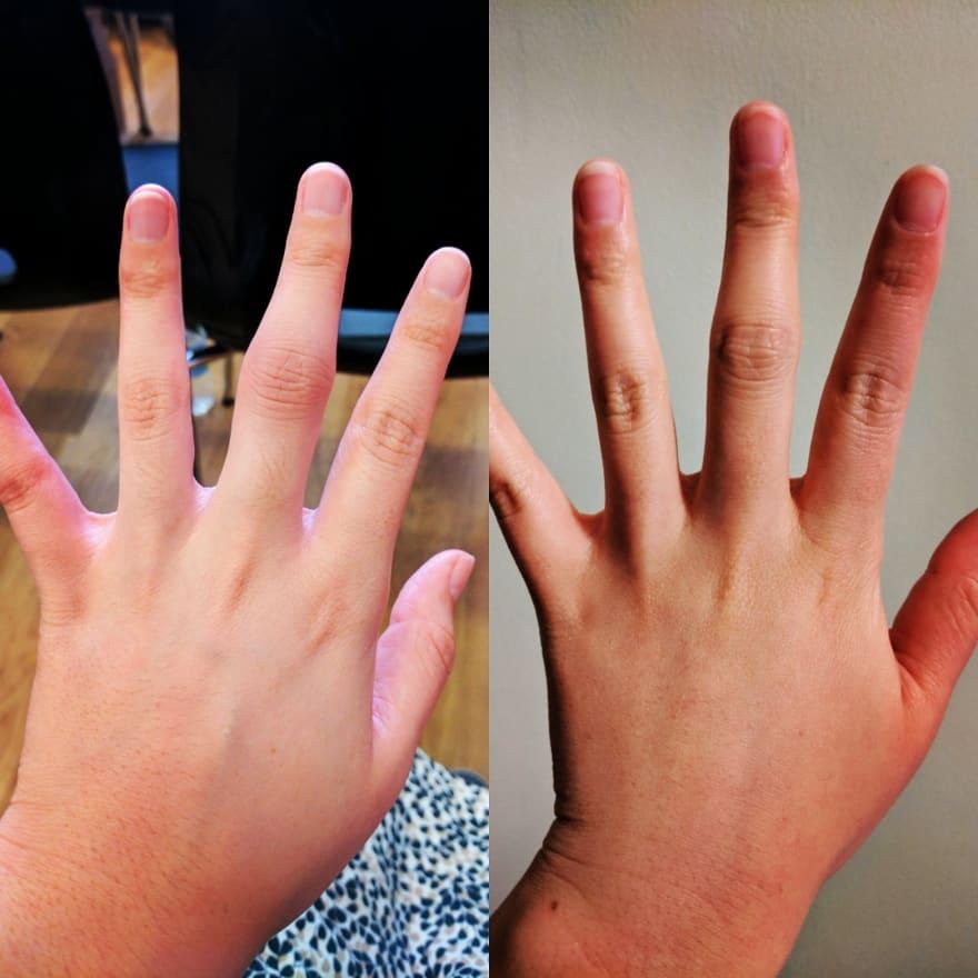 Hiro's fingers, with swollen joints due to Rheumatoid Arthritis