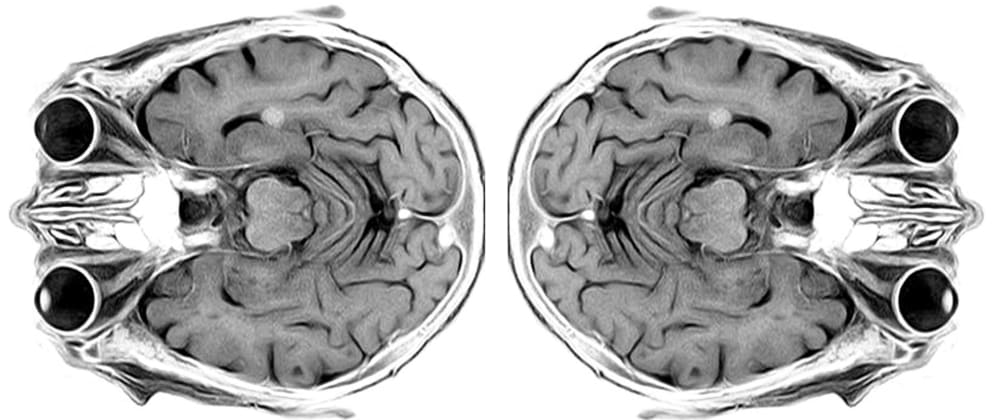 Cover image for MRI Data Processing with Python