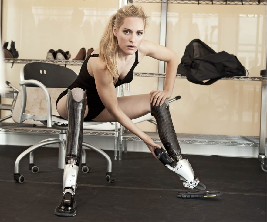 very attractive woman with double below knee amputations and prosthetic legs
